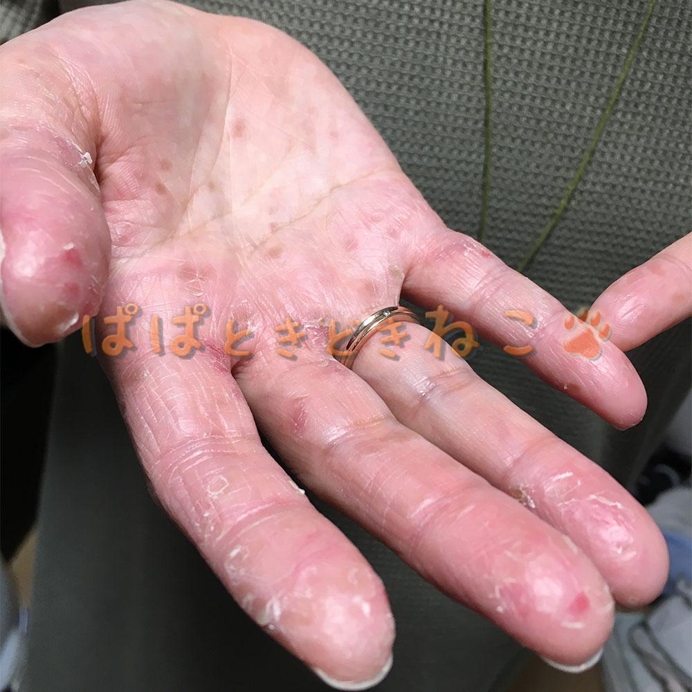 手足口病 妻の指の写真(回復気味)