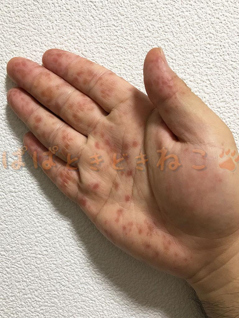 手足口病の症状 6日目の写真(回復傾向)