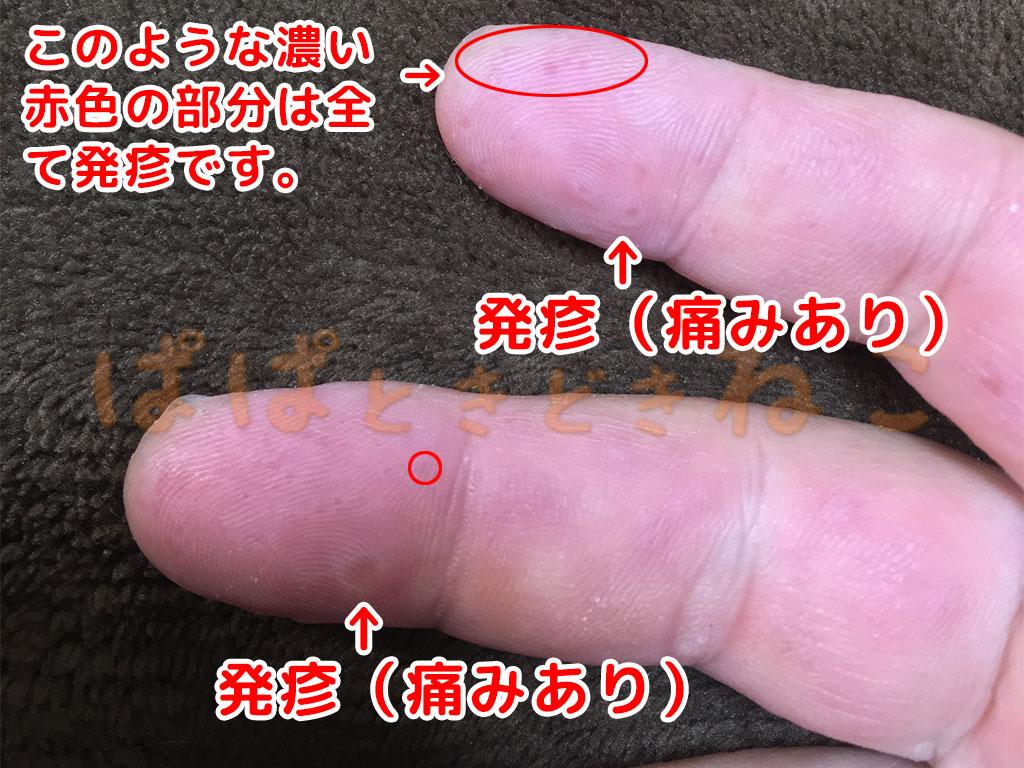 手足口病の症状 5日目の写真(発疹が徐々に拡張)
