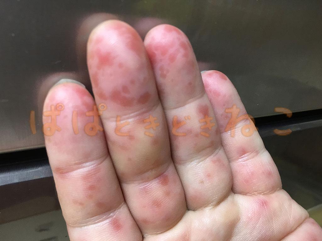 手足口病の症状 7日目の写真(発疹が多少マシに)
