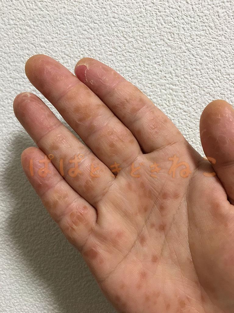 手足口病の症状 8日目の写真(皮膚が剥けてくる)