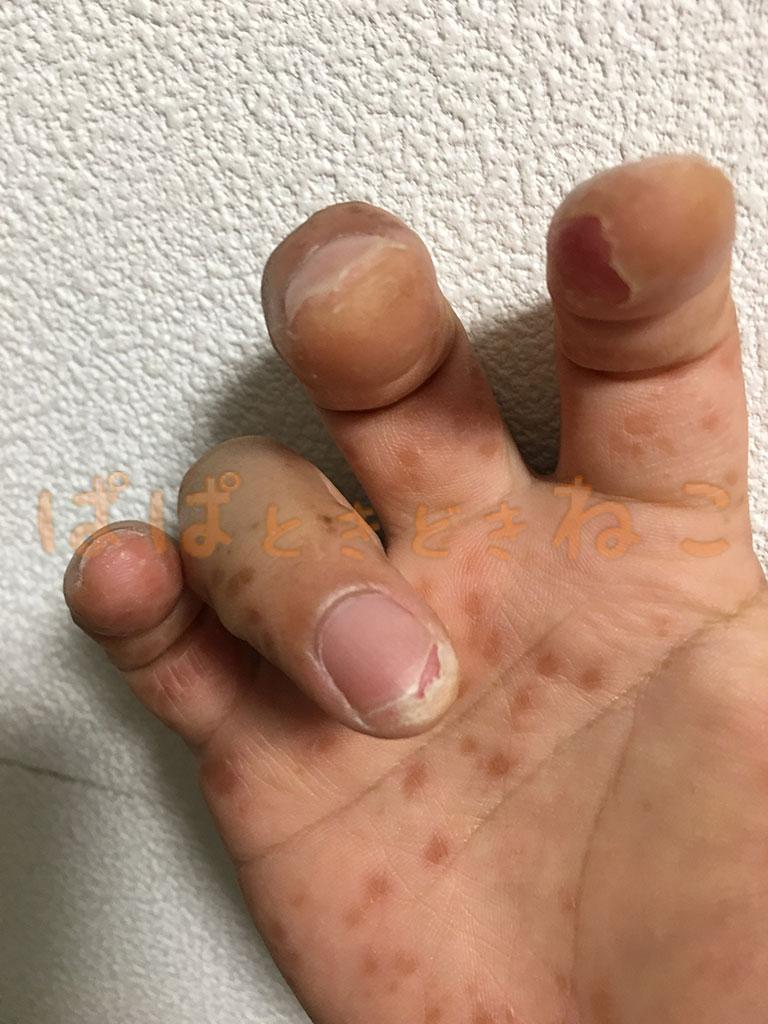 手足口病の症状 8日目の写真(指先の皮膚が剥けてくるその2)