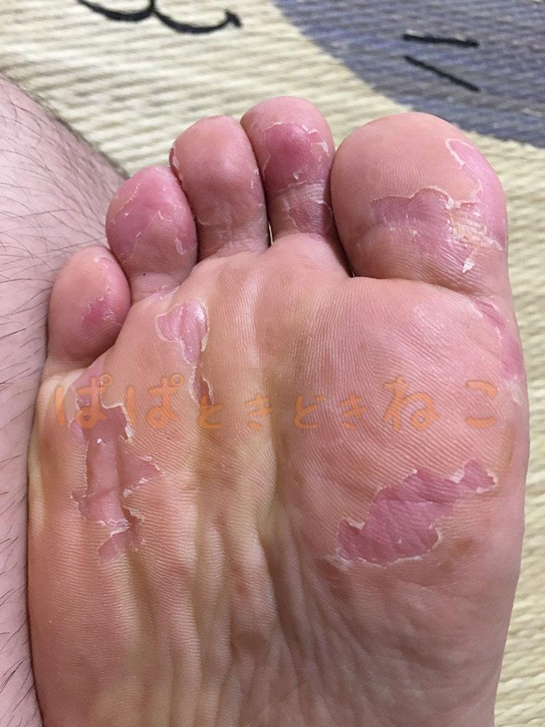 手足口病の症状 12日目の写真(あらかた捲れた足の皮膚)